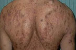 背上长痘痘的原因都有哪些