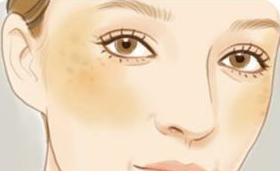 面部呈现黄褐斑的诱发因素有什么