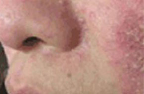 怎样清除脸上的痘痘