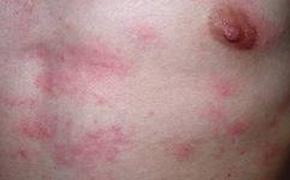 胆碱性能荨麻疹有什么症状