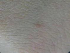 扁平疣危害身体 用偏方科学医治