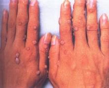 可自身接种传染的寻常疣危害有多大