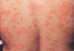 慢性荨麻疹什么症状