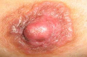 女性乳头周围有湿疹怎么治疗