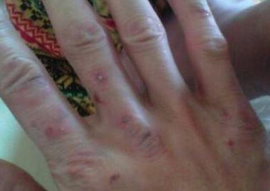 面部过敏性皮炎的伤害有什么
