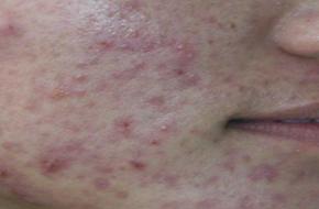 如何治顽固性的痘?