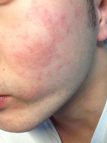 有皮肤过敏的危害是什么