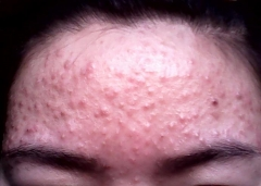 常州毛囊炎治疗有何方法 毛囊炎怎么护理有利于康复