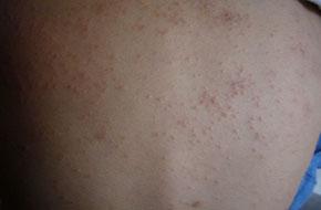 湿疹患者如何饮食能减轻瘙痒及皮损