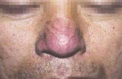 常州皮肤病专科螨虫检查多少钱 得了酒糟鼻要做什么检查