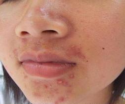 下巴长很多粉刺是什么原因