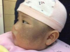 产生太田痣的主要原因及症状需科学化了解