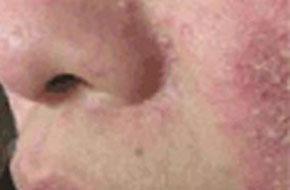 为什么痘痘长在脸上