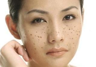 脸部长斑主要是这几个原因
