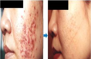 左边脸上长痘痘是什么原因