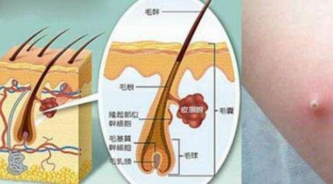 有哪些可以改善毛囊炎症状的方法