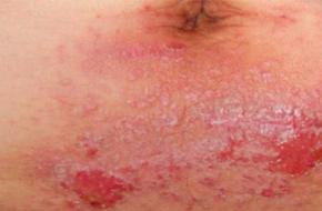 湿疹会导致色素沉积吗?