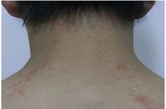湿疹引起的瘙痒水泡用什么药膏治疗好