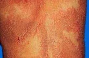 中药治疗阴部过敏性湿疹效果好吗