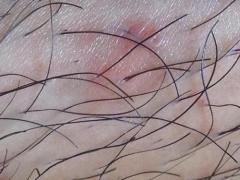 治疗毛囊炎的护理要点需科学掌控