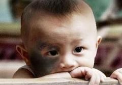 太田痣的主要症状与危害要科学化认知以有效去除太田痣